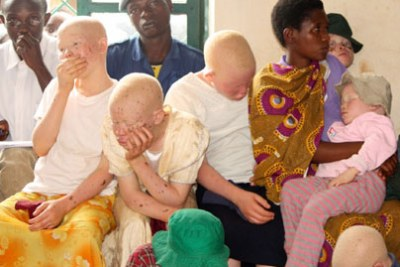 Albinos have been the victims of murder due to witchcraft-related practices (file photo).