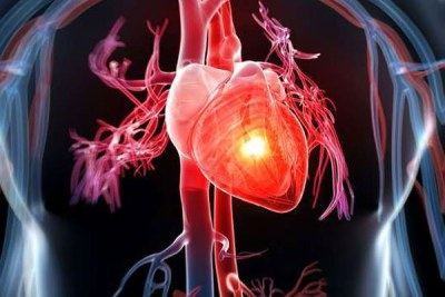 Cardiovascular diseases is a general term for conditions affecting the heart or blood vessels, usually associated with a build-up of fatty deposits in the arteries (atherosclerosis) and an increased risk of blood clots. (file photo).