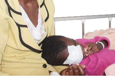 Eye Cancer in Children on the rise in Tanzania.