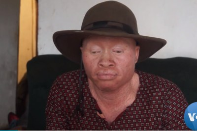 Lazarus Chigwandali with albinism faced a lot of discrimination because of the way his bodies looked.
