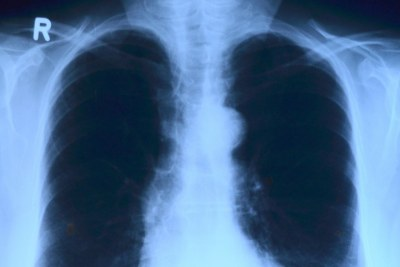 Raising the Alarm on Lung Cancer Caused by Little-Known Gas